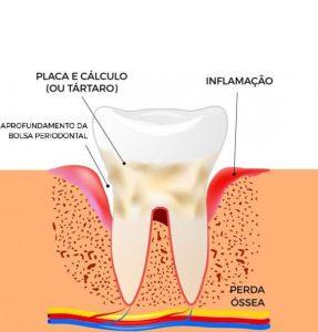 Ilustração para periodontite