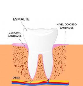 Ilustração da periodontite pós tratamento