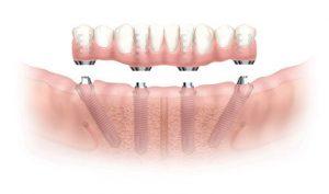Imagem ilustrativa da instalação do Implante Overdenture