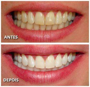 imagem do clareamento dental a laser antes e depois