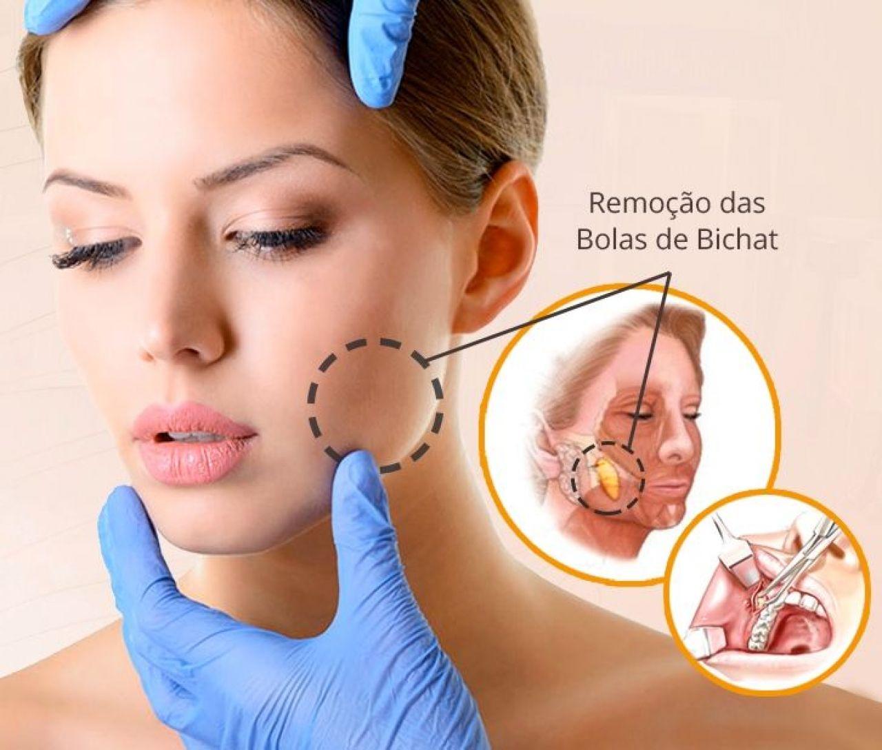 Ilustração explicativa sobre a Bola de Bichat: Bichectomia