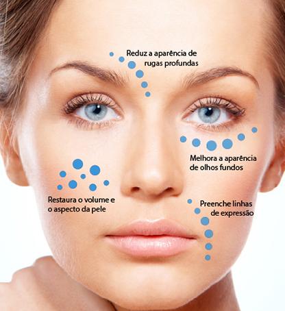 Imagem ilustrativa sobre o que é preenchimento facial e qual o tratamento?