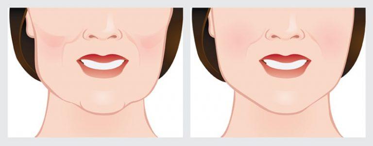 Imagem ilustratativa do antes e depois do tratamento de Bichectomia