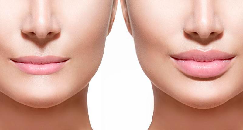 Imagem ilustrativa do antes e depois do tratamento de preenchimento labial