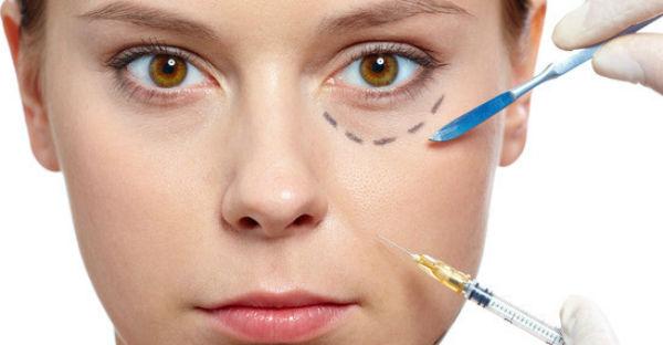 Imagem ilustrativa do procedimento de preenchimento de olheiras